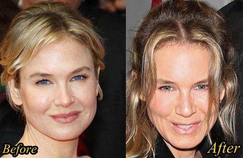 Renee Zellweger before - after