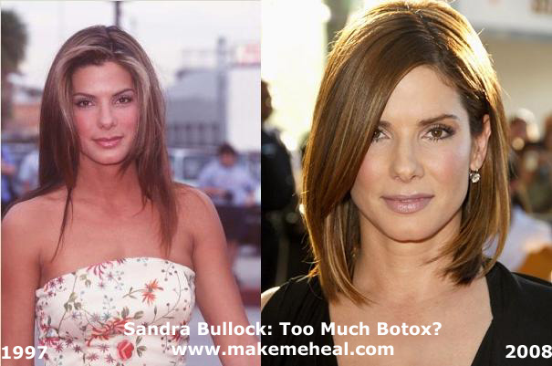 Sandra Bullock plastic surgery? (image hosted by makemeheal.com)