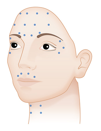 Botox injection points