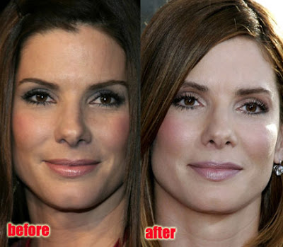Sandra Bullock before and after pictures (image hosted plasticsurgeryceleb.blogspot.com)