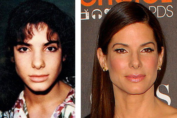 Sandra Bullock nose job / rhinoplasty? (image hosted by alteredidentity.com)