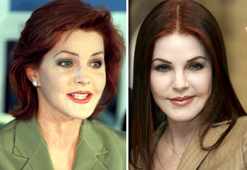 Priscilla Presley plastic surgery gone wrong (image hosted by http://resources1.news.com.au)