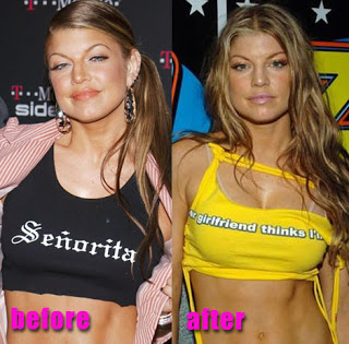Fergie before and after boob-job (breast enhancement) surgery? (image hosted by buzz.makoyskie.com)