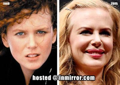 Nicole Kidman botox queen? (image hosted by inmirror.com)