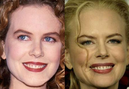 Nicole Kidman before and after? (image hosted by http://chatterbusy.blogspot.com.es)
