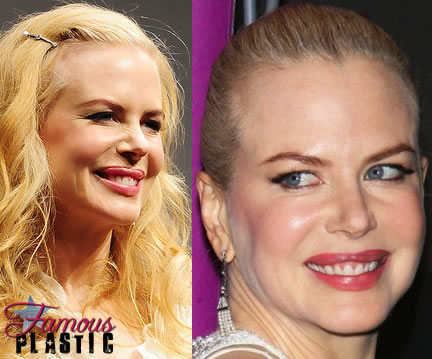 Nicole Kidman after botox? (image hosted by famousplastic.com)
