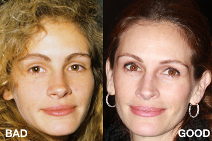 Julia Roberts younger and older, before and after comparison (image courtesy of http://www.totalbeauty.com)