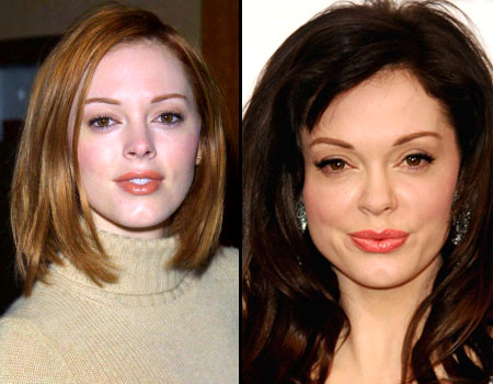 Rose McGowan plastic surgery? (image hosted by savvyskin.com)