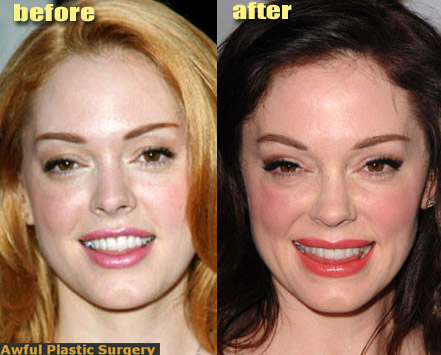 Rose McGowan before and after photos (image hosted by thegloss.com)