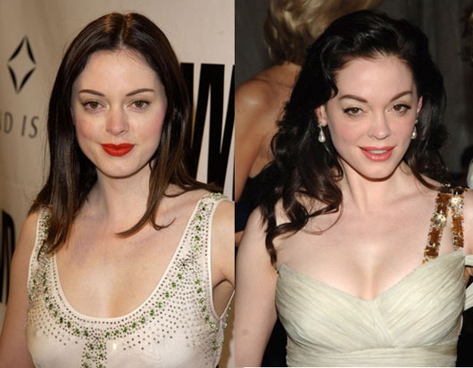 Rose McGowan before and after pictures (image hosted by revealyourbeauty.com)