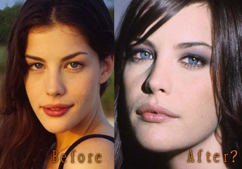 Liv Tyler's Lip Augmentation