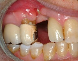 bad dental implants
