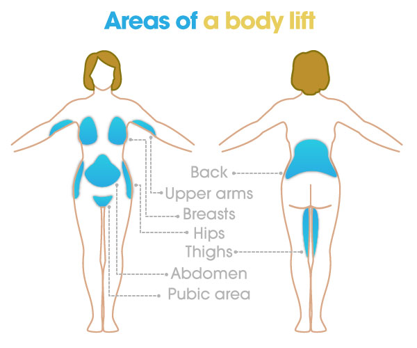 areas of a body lift