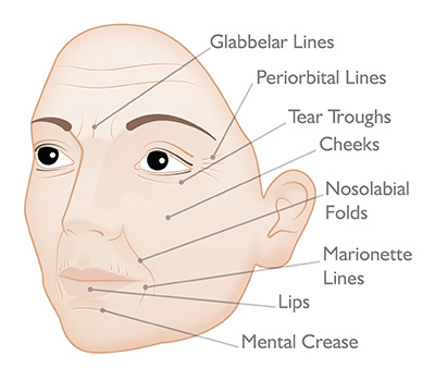 Target areas: Facial Dermal Fillers
