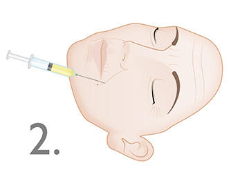 Dermal Injection of the Naso Labial Fold : Step 2