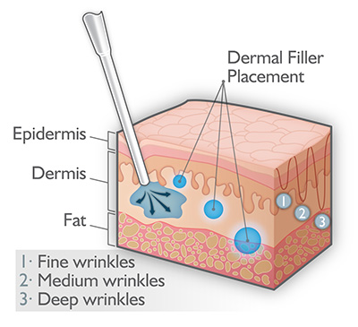 different levels of dermal injection