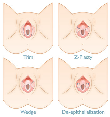 Labia Surgery Techniques