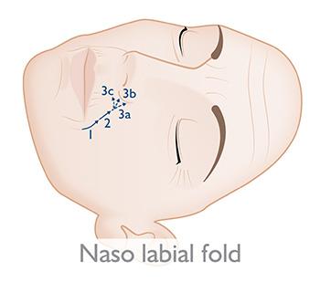 Naso labial fold