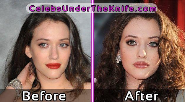 Kat Dennings Surgery Photos Before After #celebsundertheknife #celebs #celebrity #plasticsurgery #c… | Celebrity surgery, Celebrity plastic surgery, Plastic surgery