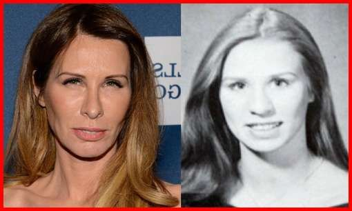 Carole Radziwill Plastic Surgery Before & After | Carole radziwill, Plastic surgery, Cosmetic surgery