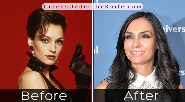X-MEN Star - Famke Jansson has had plastic surgery? Pics inside! #celebsundertheknife #celebrity #pl… | Plastic surgery, Cosmetic surgery, Celebrity plastic surgery