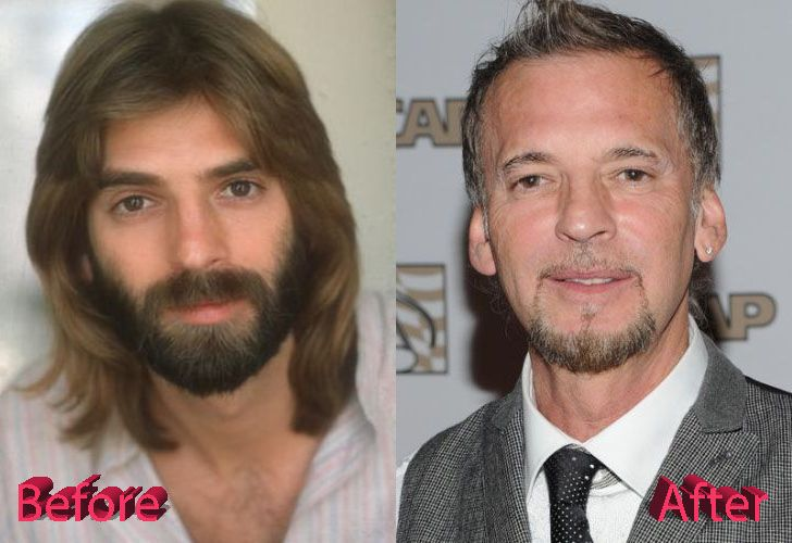 Famous Plastic Surgery Kenny Loggins Not A Good | Kenny loggins, Plastic surgery, Cosmetic surgery