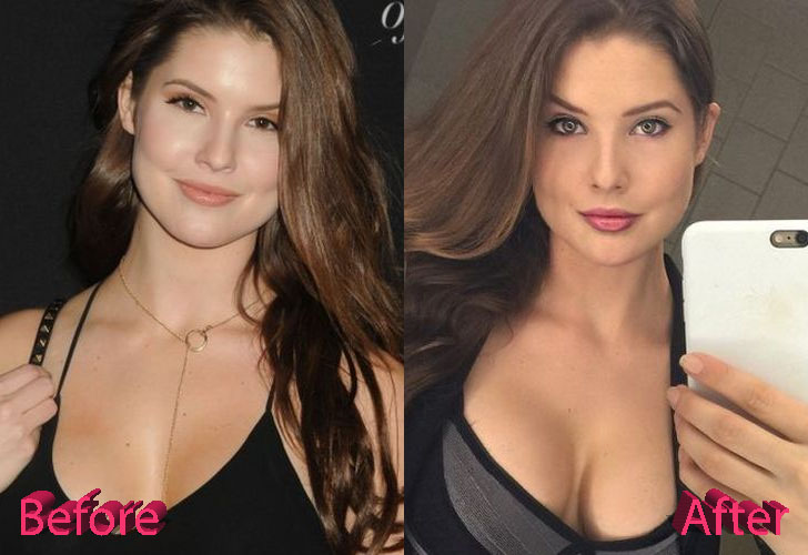 Amanda Cerny Plastic Surgery: A Very Lovely Bunny