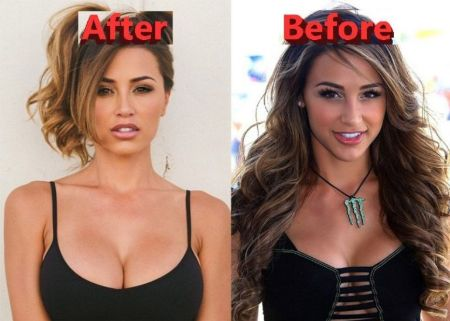 Ana Cheri Plastic Surgery - Did She Really Go Under the Knife? | Glamour Fame