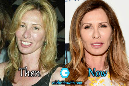 Carole Radziwill Plastic Surgery, Facelift, Eyelift, Before and After Pictures - CelebritiesWith.com