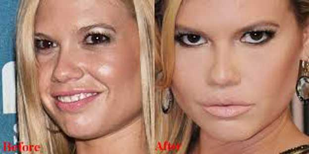 Chanel West Coast Plastic Surgery Transformation – What's the Truth? - Plastic Surgery Celebrity