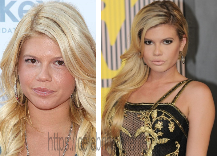 Chanel West Coast Plastic Surgery Photos - Verge Campus