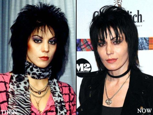 Joan Jett Plastic Surgery Before and After Photo - Celebrity Plastic Surgery