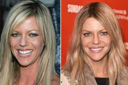 What's Up with Kaitlin Olson's Plastic Surgery Discussions? | Idol Persona