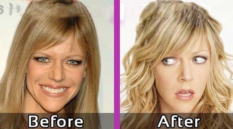 Kaitlin Olson Plastic Surgery: Facelift, Boob Job, Botox