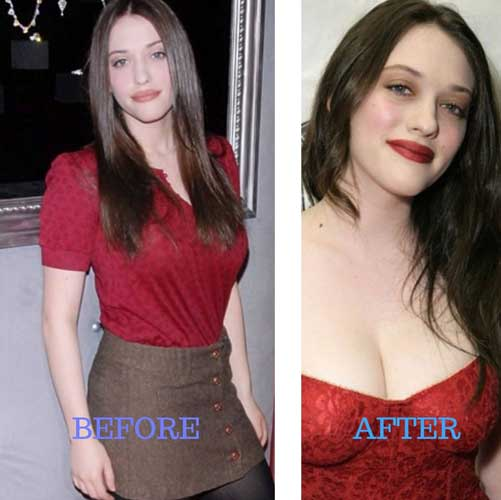 Kat Dennings Plastic Surgery: Breast Size, Before and After, Lip filler