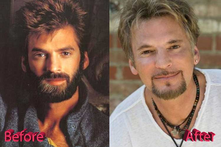 Kenny Loggins Plastic Surgery: Facelift, Botox, Eyelid Surgery