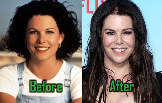 Lauren Graham Plastic Surgery: What Has She Done? | CelebritySurgeryIcon