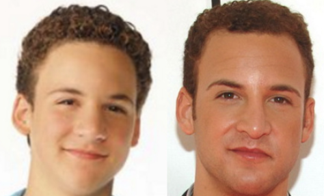 Ben Savage Plastic Surgery