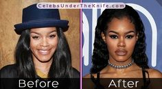 400+ Best All Celebrity Plastic Surgery images in 2020 | celebrity plastic surgery, plastic surgery, surgery