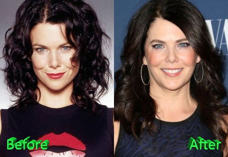 lauren-graham-before-and-after-cosmetic-surgery - VIP ... | Plastic surgery, Lauren sanchez, Cosmetic surgery