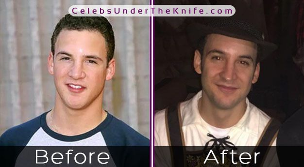 BOY MEETS WORLD - Ben Savage's Nose Job Photos? #plasticsurgery #nosejob #celebsundertheknife | Nose job, Plastic surgery, Boy meets world