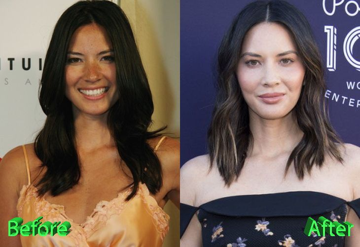 Olivia Munn Plastic Surgery: An Improvement Or Not | Plastic surgery, Olivia munn, Celebrity plastic surgery