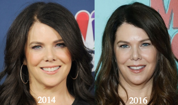 Lauren Graham Plastic Surgery - With Before And After Photos